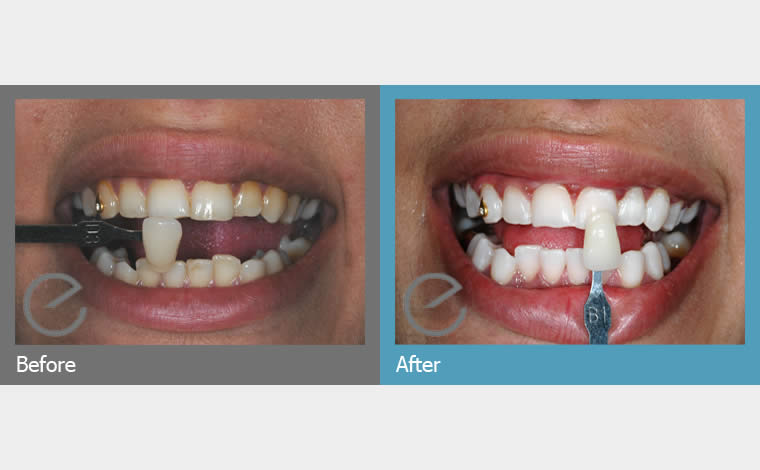Teeth Whitening In Mill Hill At Apex Dental Care London